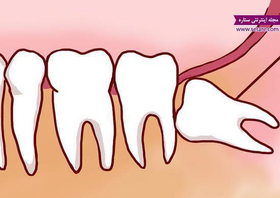 جراحی دندان عقل نهفته چگونه است؟